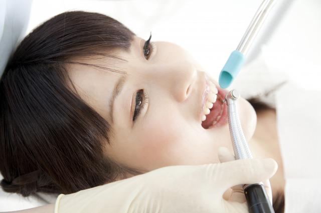 歯科医院で行うホワイトニング